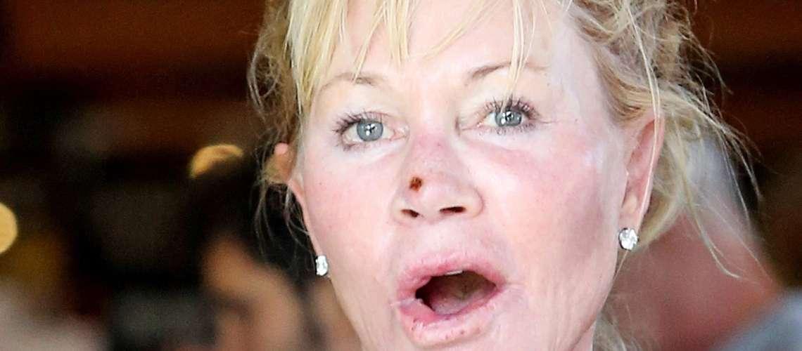 Kaj se dogaja z nosom slavne igralke?