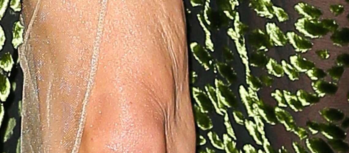 Slavna igralka ima obupno viseča kolena