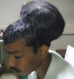 možganski tumor, Santlal Pal