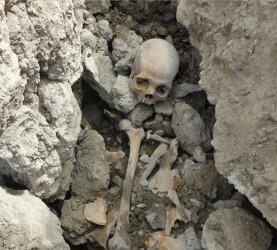 Lobanja, kosti, okostje