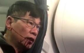 VIDEO: Američani besnijo: tako brutalno z letala v Chicagu mečejo odvečne potnike