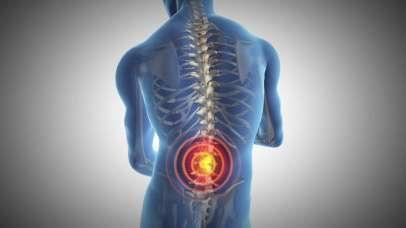 Elektrostimulacija - za življenje brez bolečin