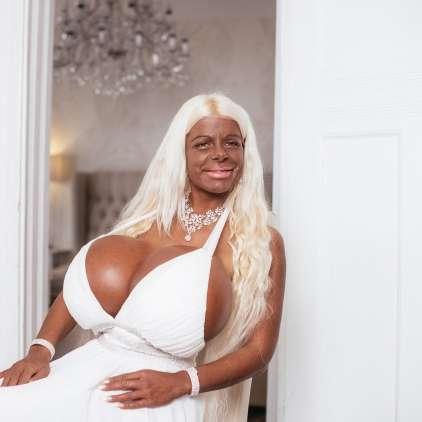Manekenka z največjimi prsmi v Evropi: Želim si postati temnopolta