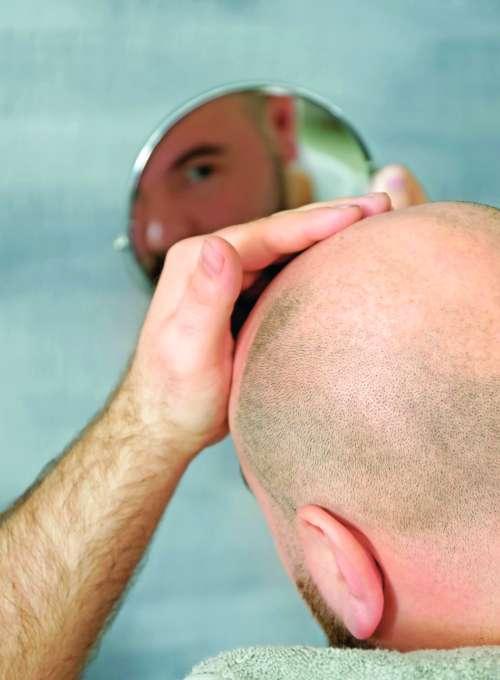 Protokol za ponovno rast las