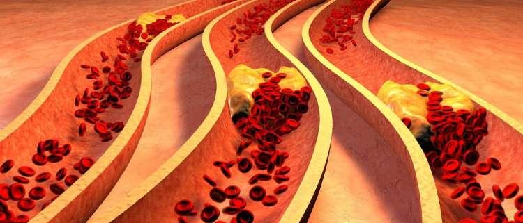 holesterol mašenje žil