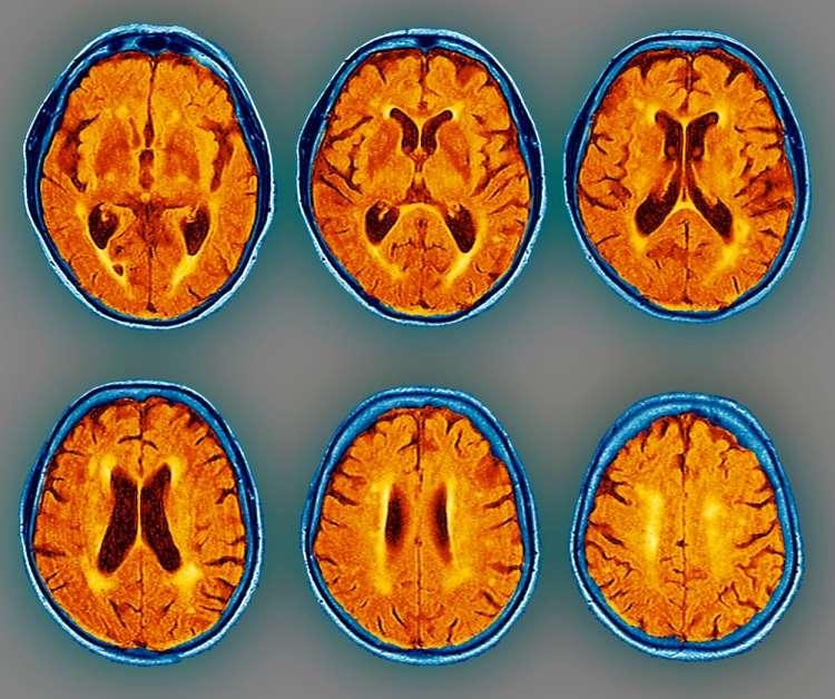 možgani, skeni, demenca