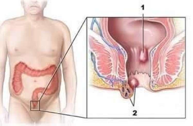 Zunanji in notranji hemoroidi