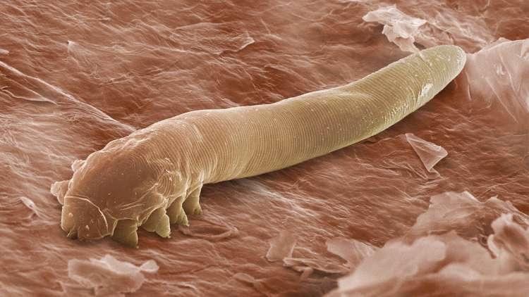 Detox pršice živijo na naši koži, nahajajo se tudi v laseh, dlakah, obrveh in trepalnicah.