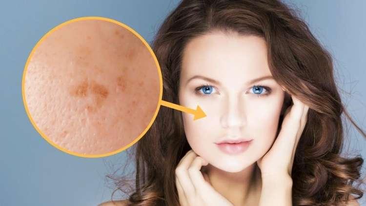 Ste tudi vi na koži zasledili temne madeže?