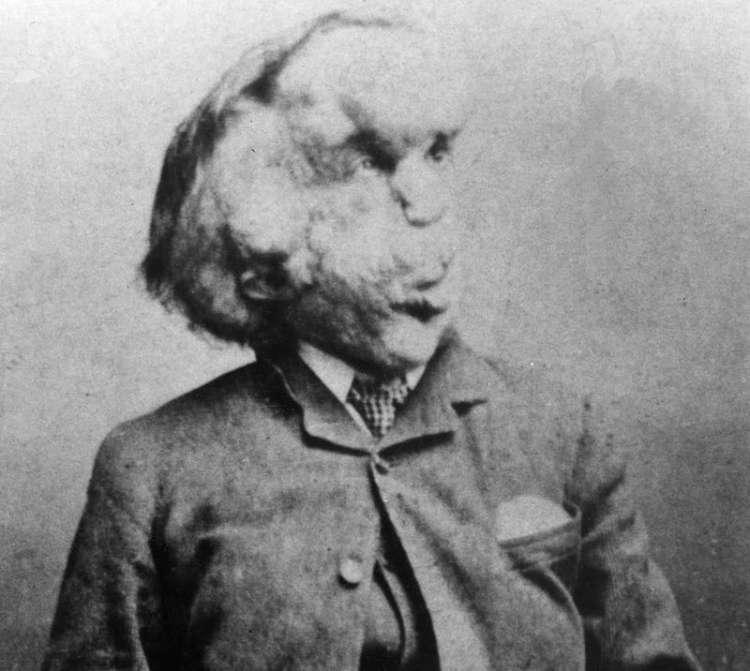 Joseph Merrick, človek slon