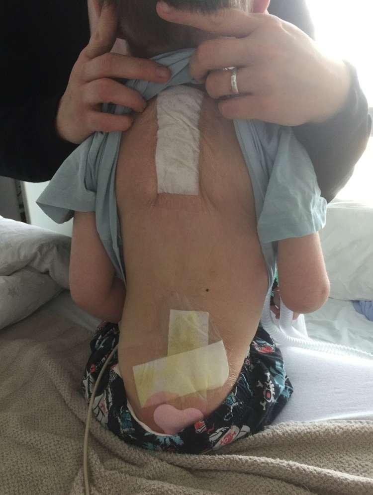 operacija hrbtenice, 6-letni deček, 3d printer