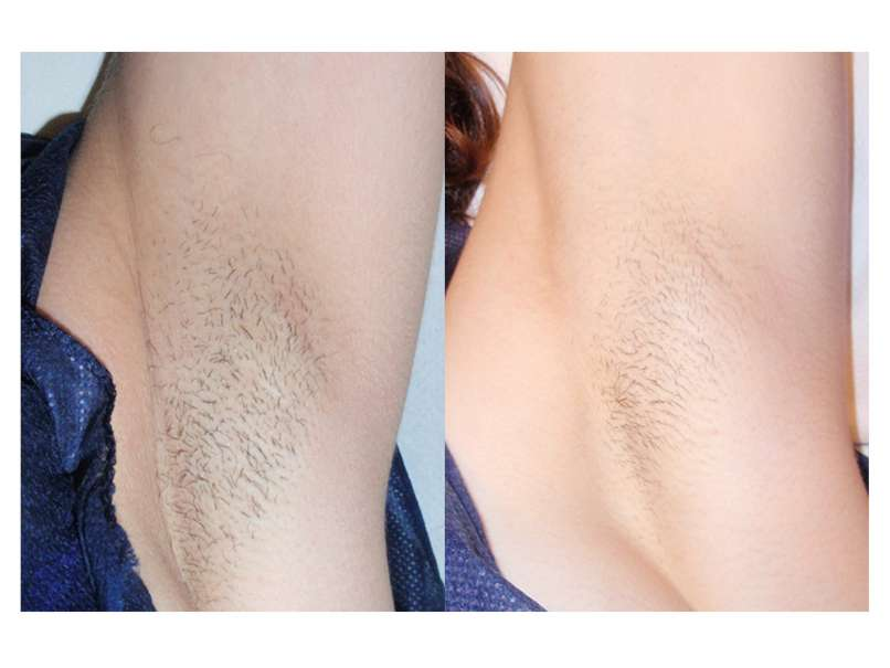 Armpits_before and after