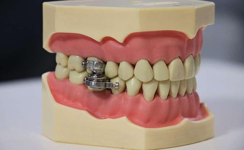 dentalslim-diet-control, dieta